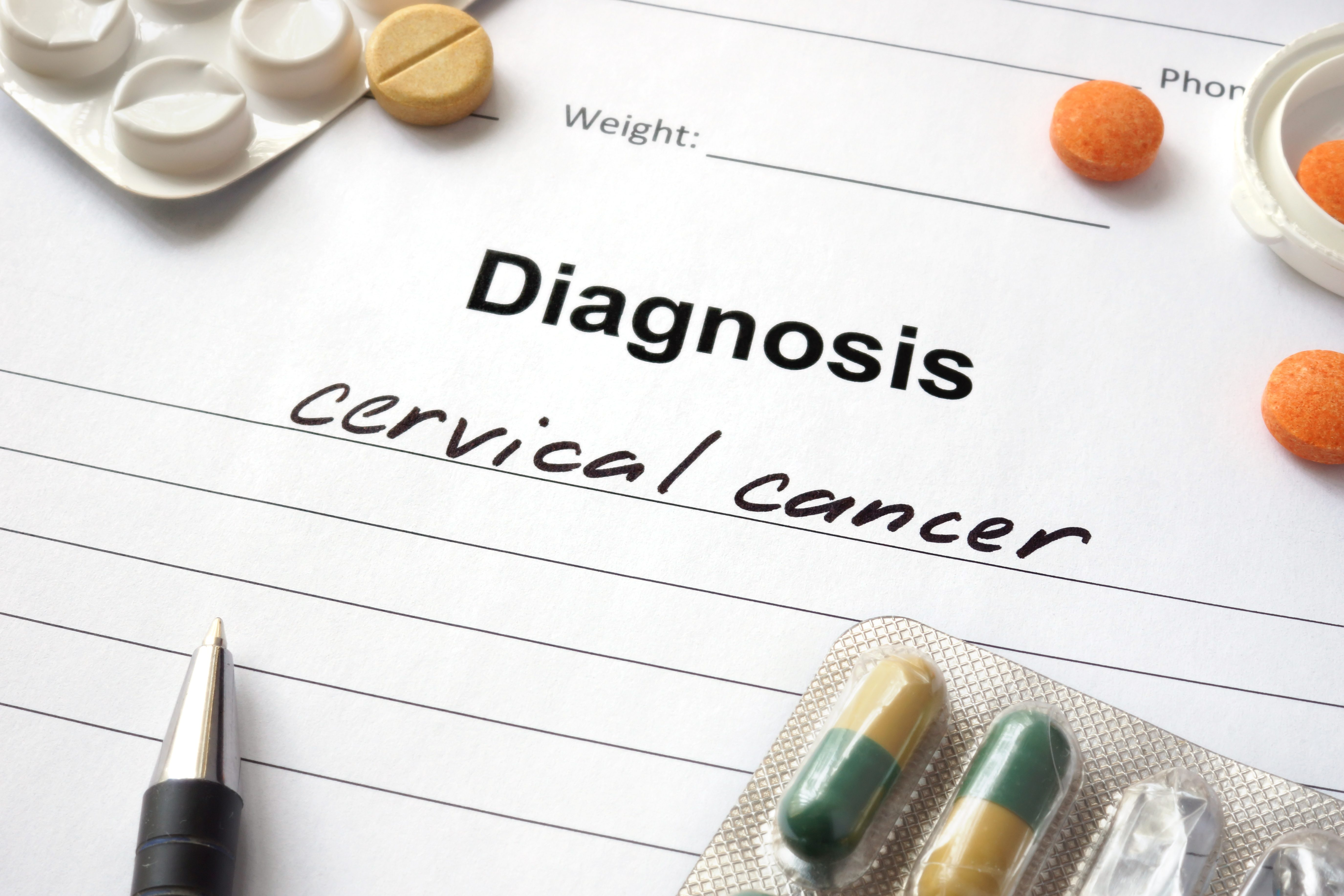Cancerwise blog post: Learn about cervical cancer myths