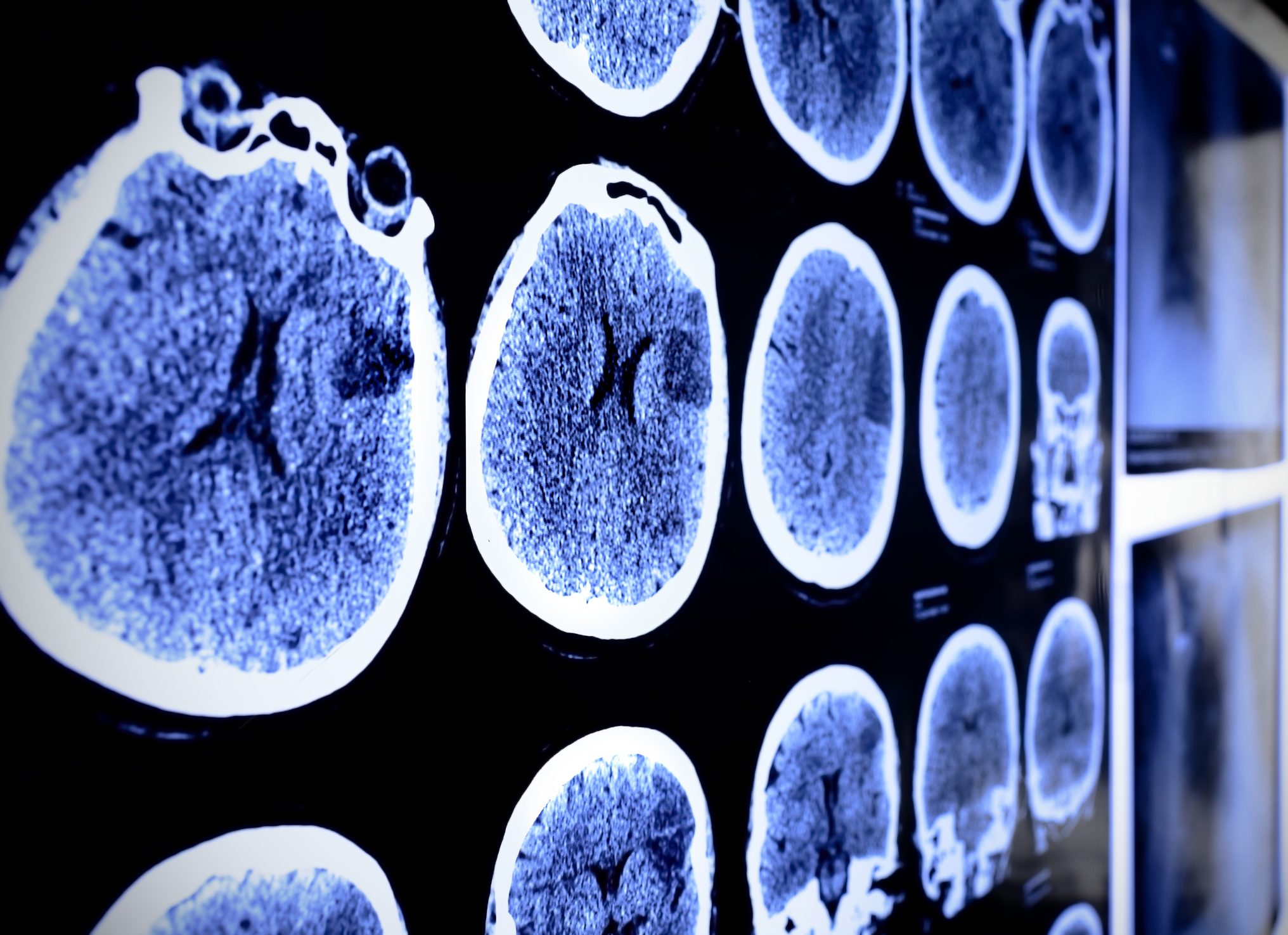 Cancerwise blog post: What to know about brain tumors, brain tumor treatment and clinical trials for brain tumors