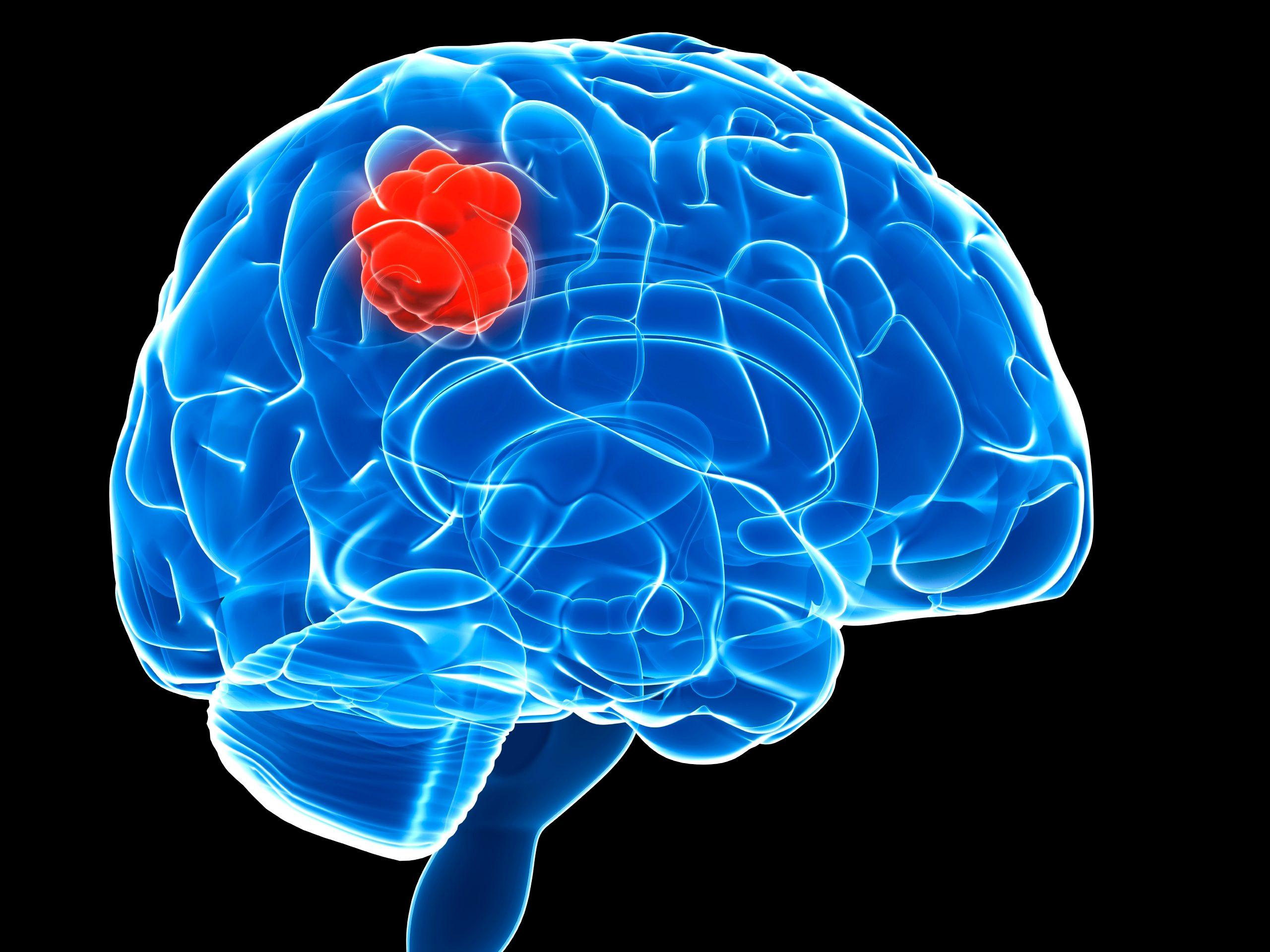 Smart bomb virus shows promise as brain tumor immunotherapy