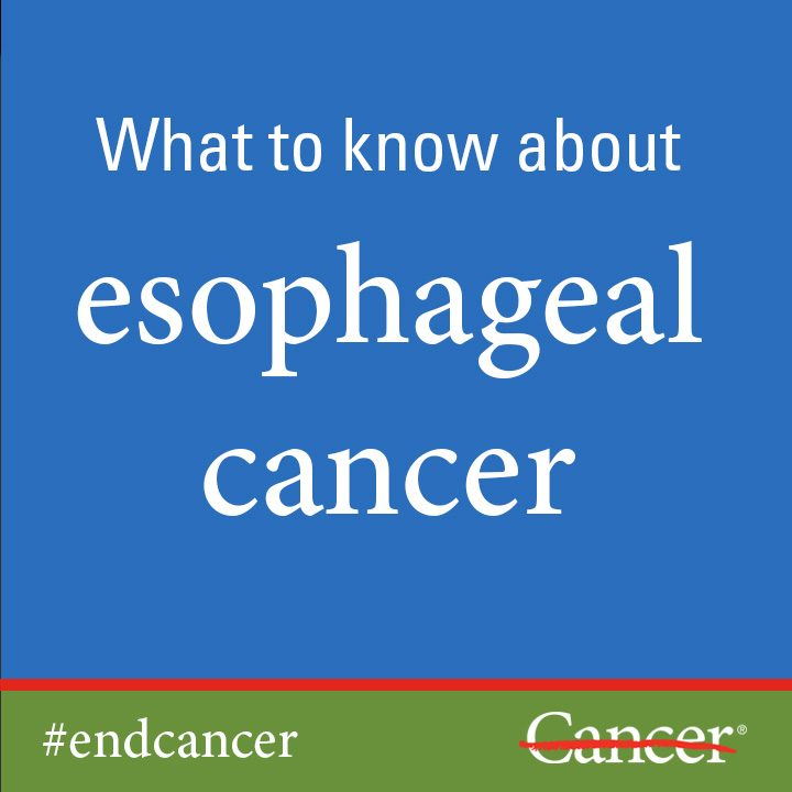 Learn about esophageal cancer diagnosis and esophageal cancer treatment.