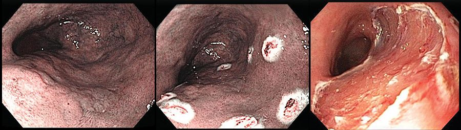 Endoscopic images